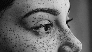 Close-up of face with many freckles